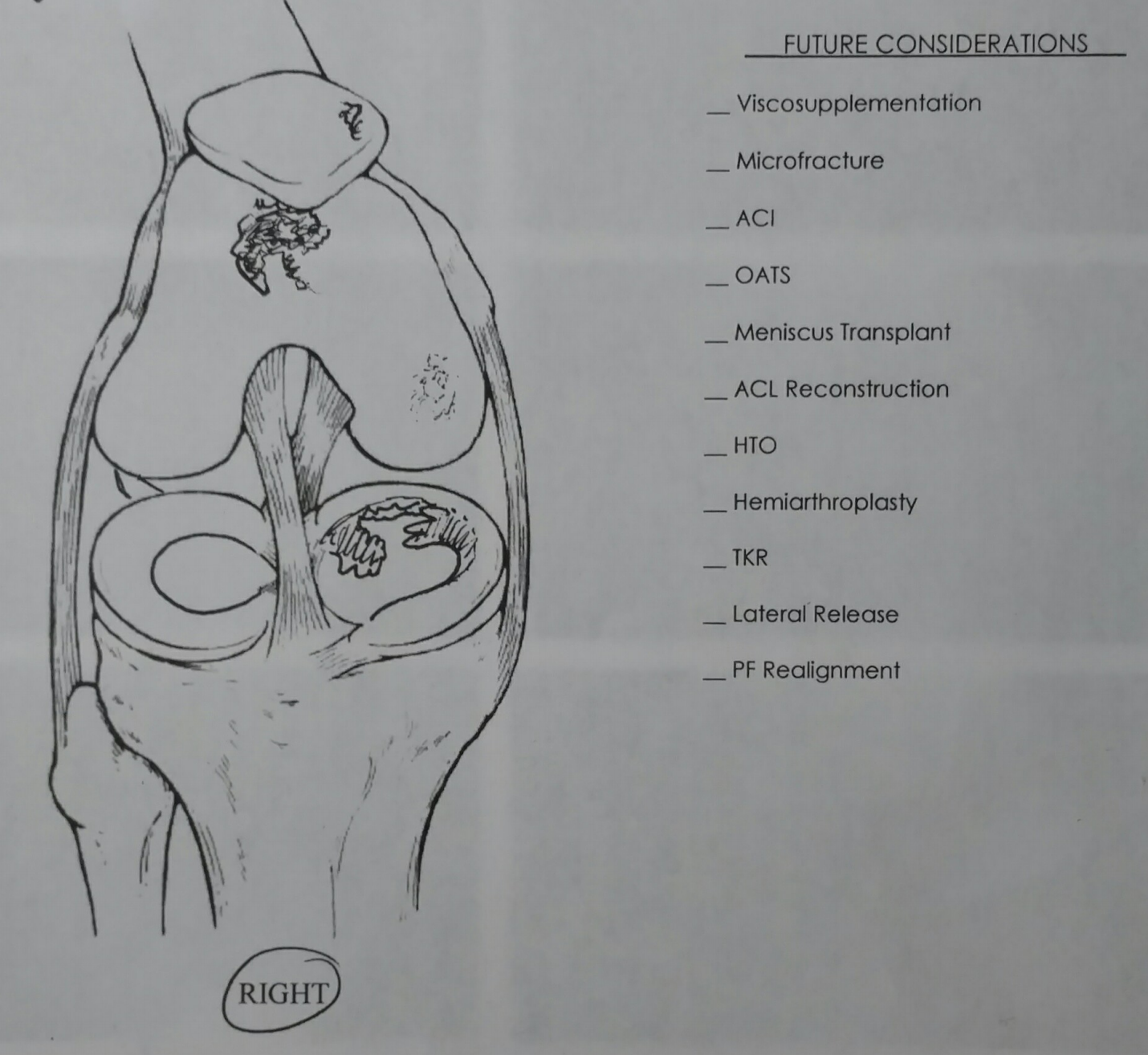 Doctor's sketch of right knee meniscus
